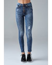 Forever 21 | Blue Buttoned High-rise Skinny Jeans | Lyst