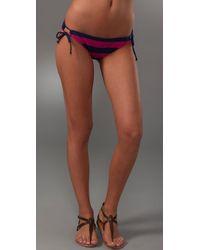 Splendid | Pink Marcel Stripe Bikini Bottoms | Lyst