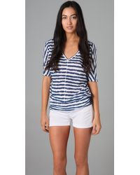 C&C California - Blue Uneven Stripe Tunic - Lyst