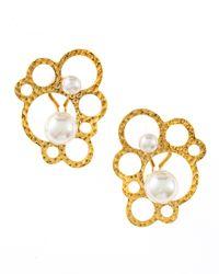 Majorica | Metallic Hammered Bubble Pearl Earrings | Lyst