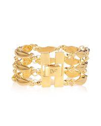 Diane von Furstenberg | Metallic Gold-plated Lips Bracelet | Lyst