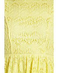 Forever 21 - Yellow Retro Lace Dress - Lyst