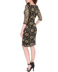 True Decadence - Multicolor Lace Layer Midi Dress - Lyst