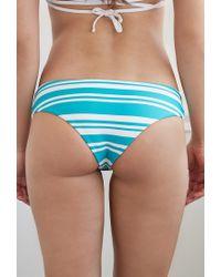 Forever 21 - Blue Reversible Striped Peekaboo Bikini Bottoms - Lyst