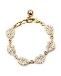 Lulu Frost | Metallic Le Baiser Multi Lip Bracelet | Lyst