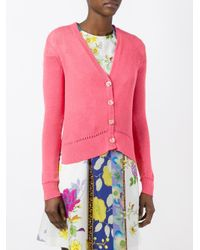 Etro | Pink Button Up Cardigan | Lyst