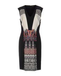 Etro | Black Knee-length Dress | Lyst
