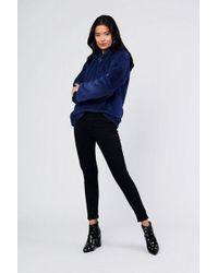 Glamorous - faux Fur Hooded Zip Sweatshirt By - Lyst