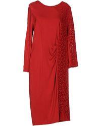 Severi Darling - Knee-length Dress - Lyst
